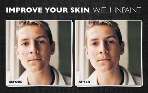 inpaint5-skin