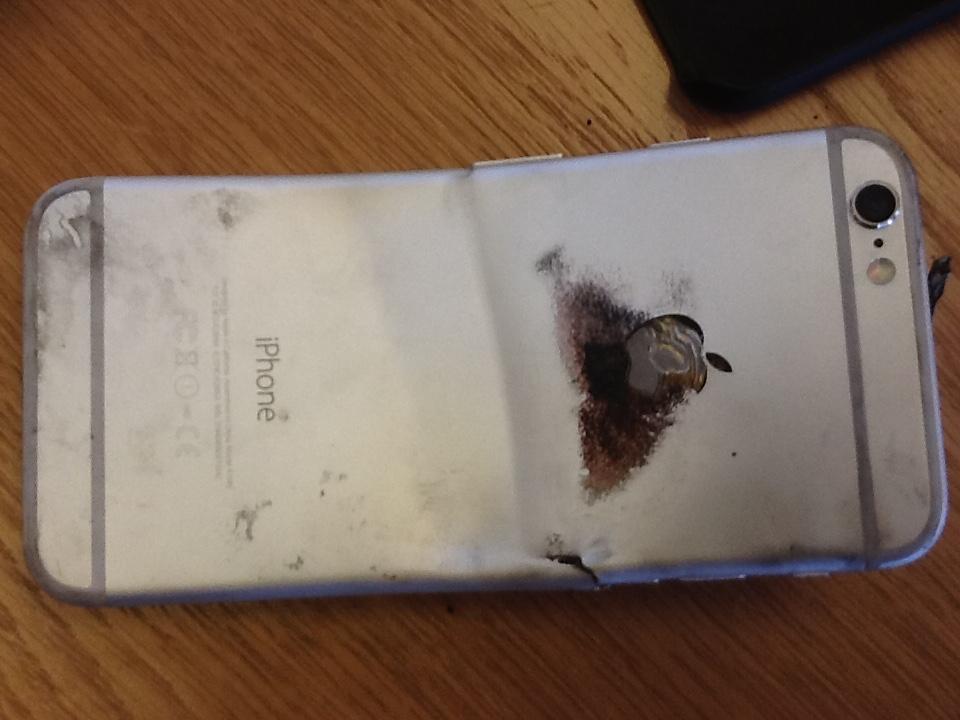 iPhone 6 entorta e pega fogo, queimadura de 2º grau